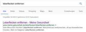 SEO Suchmaschinenoptimierung Onpage-Optimierung Leberflecken entfernen
